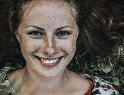 Manchas en la piel: Por qué salen y cómo eliminarlas
